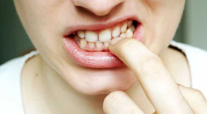Девушка Рот Свадьба вывих Зубы