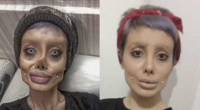 Чтобы быть похожей на Анджелину Джоли, что использовала девушка фотошоп или пластику?