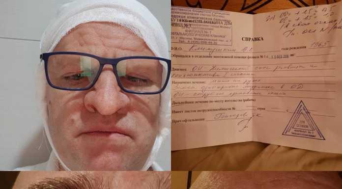 Актер Алексей Климушкин ослеп на один глаз