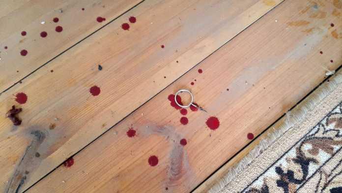 У оренбуржца оторвало руку во время знакомства с гранатой